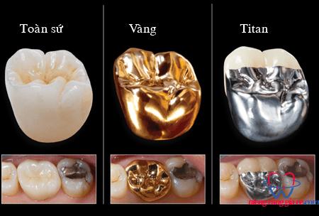 răng kim loại