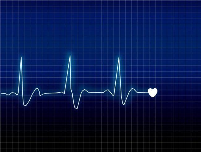 biểu đồ nhịp tim